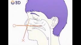インフルエンザ検査の仕方(鼻)