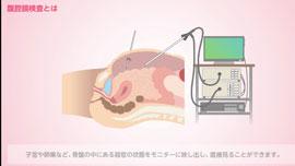 腹腔鏡検査