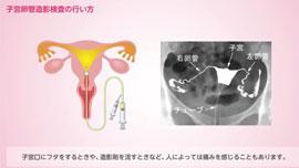 子宮卵管造影検査